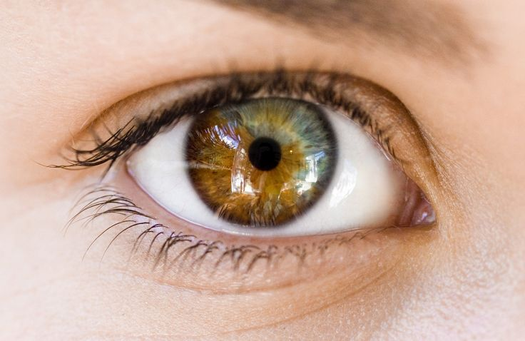 I have this in one of my eyes!  (Sectoral heterochromia - one of my eyes is partially a different color) :)