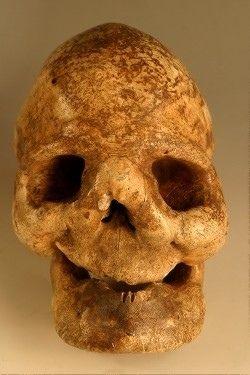 Un cas de Leontiasis ossea dans les collections du Museum d'Histoire Naturelle de Perpignan (1)