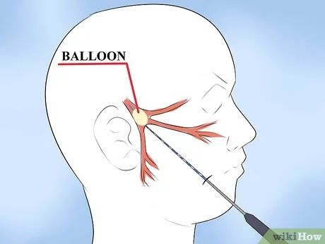 Image titled Alleviate Pain Caused by Trigeminal Neuralgia Step 8