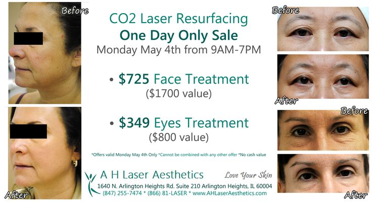 $725 #CO2 #Laser #Resurfacing #Face treatment & $349 CO2 Laser Resurfacing #Eyes #treatment on Monday May 4th Only at AH Laser Aesthetics!