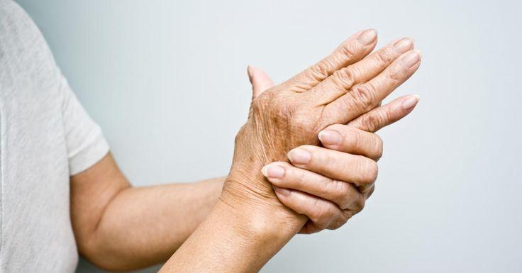 La existencia de inflamación en alguna articulación es llamada La Artritis. Cuando empezamos a sentir algún tipo de dolor o rigidez en las articulaciones podemos llamarlo así. El dolor en las manos, rodillas, hombres u otra articulación que cuesta trabajo moverla se llegan a inflamar, esto podría ser los síntomas de la artritis, todos sabemos