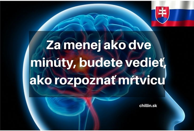 Slovenská lekárka radí, ako rozpoznať mŕtvicu. Trvá len 2 minúty prečítať si toto upozornenie | Radynadzlato.sk