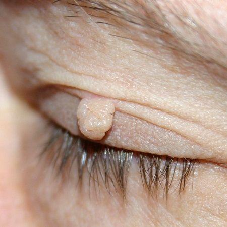 Pravdou je, že kožní onemocnění jsou velmi častým zdravotním problémem, jež postihuje řadu lidí všech věkových skupin po celém světě. A co si budeme povídat, zbavit se jich zrovna není jednoduché. Vsoučasnosti existují na trzích různé kosmetické a farmaceutické výrobky, jež by měli sloužit kodstranění tohoto nemilého kožního problému. Pravdou však je, že jsou často …