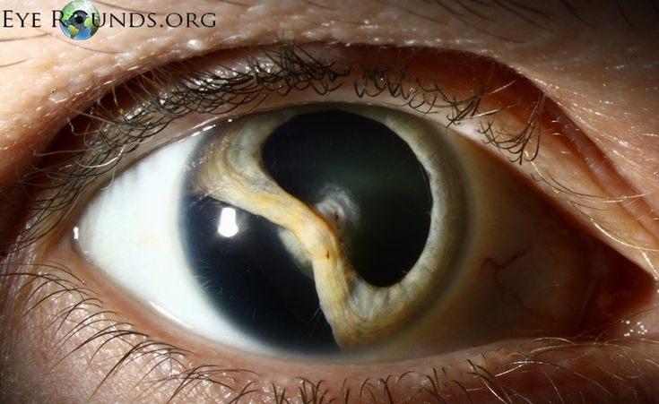 Traumatic Cataract with iridodialysis and lens coloboma