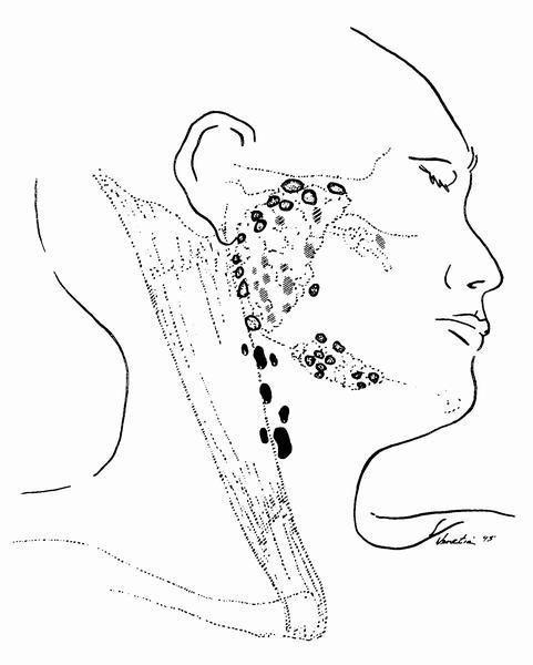 Afip Figure 1 6 The Parotid Gland Has Several Periparotid Dark