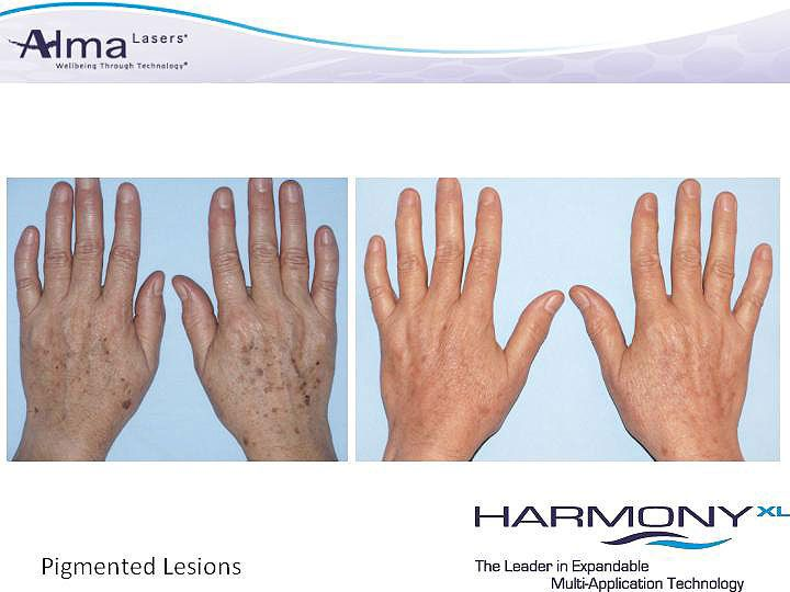 We provide #remedies for #nail #discoloration as well!  #Alma #Hair #Laser #Nails #Dermatology #Orlando #Oviedo #Blatnoy