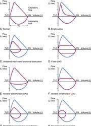 Appearance of flow-volume loops of various pulmonary