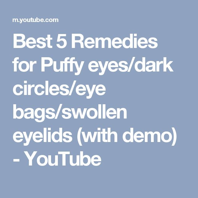 Best 5 Remedies for Puffy eyes/dark circles/eye bags/swollen eyelids (with demo) - YouTube