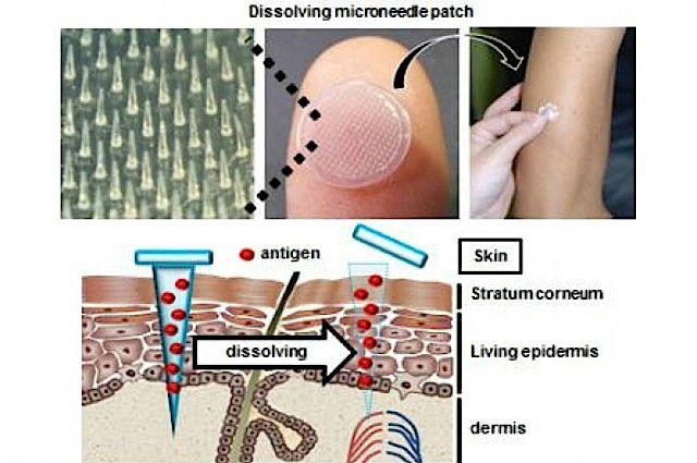Dissolvable Microneedles Beat Flu Vaccine Injection | IFLScience