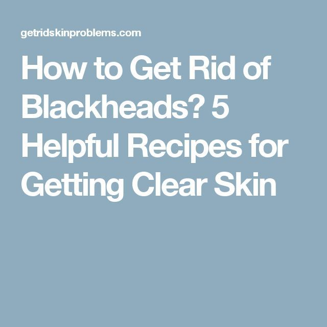 How to Get Rid of Blackheads? 5 Helpful Recipes for Getting Clear Skin