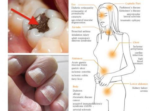 http://positivemed.com/2015/11/05/this-deadly-poison-is-inside-you-here-is-how-to-protect-yourself/