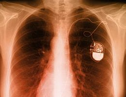 Women with heart failure may be missing out on lifesaving device | Samaritan Healthcare