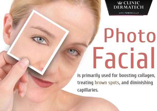 Photo Facial is primarily used for boosting collagen, treating brown spots, and diminishing capillaries. #photofacial #photorejuvenation #facial #beyondbeautifulforever #healthyliving #rejuvenate #ClinicDermatech ✆ www.clinicdermatech.com