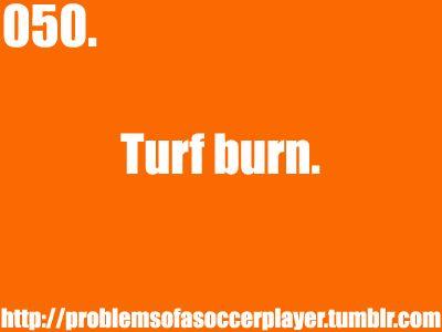 Ughh. I hate turf burn. I got some pretty bad on my knee. It looks like a shark bite.