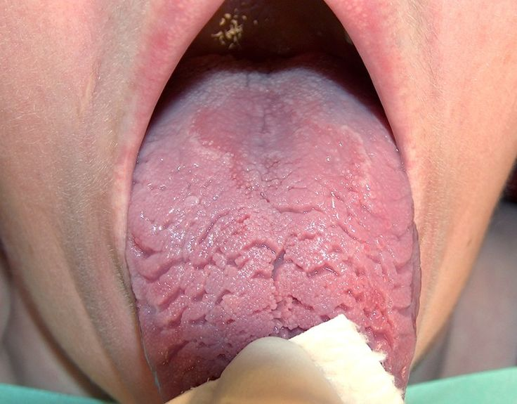 Glossitis in Vit. B12 deficiency with atrophy of papillae