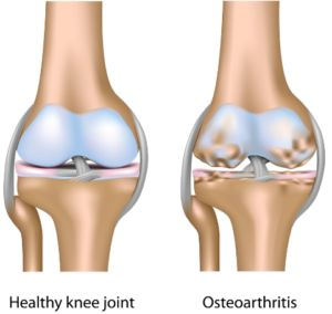 picture showing healthy and oseteoarthritis bone