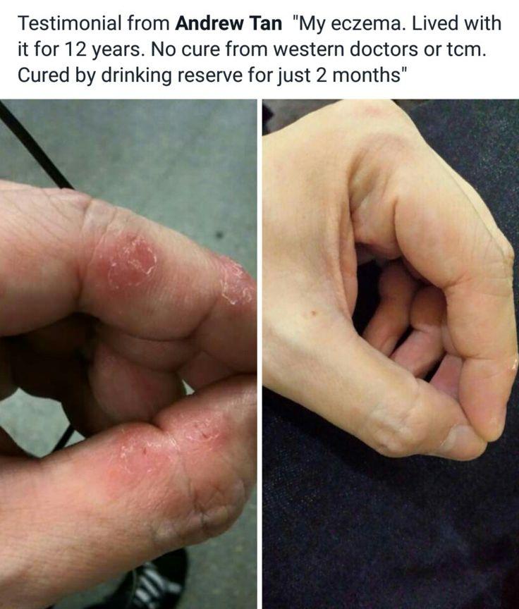 Nice testimony! I love RESERVE.  www.craving.jeunesseglobal.com
