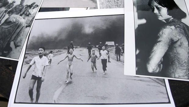 As captured in the Vietnam War's most iconic photo, Kim Phuc was seriously scarred for life by a napalm attack; now 52, she talks about healing and finding peace - watch video here:  http://www.cbsnews.com/videos/the-girl-in-the-picture