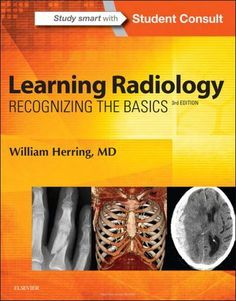 Learning Radiology Recognizing 3rd Edition (2016) [PDF] William Herring