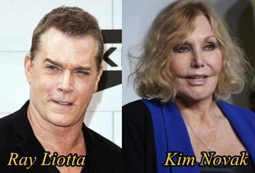 Ray Liotta Plastic Surgery Gone Wrong Before And After