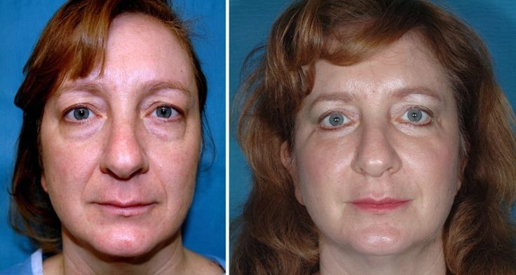 Eradicate The Ever-Lasting Aging Dilemma Via Facial Acupressure And Face Gymnastics Methods