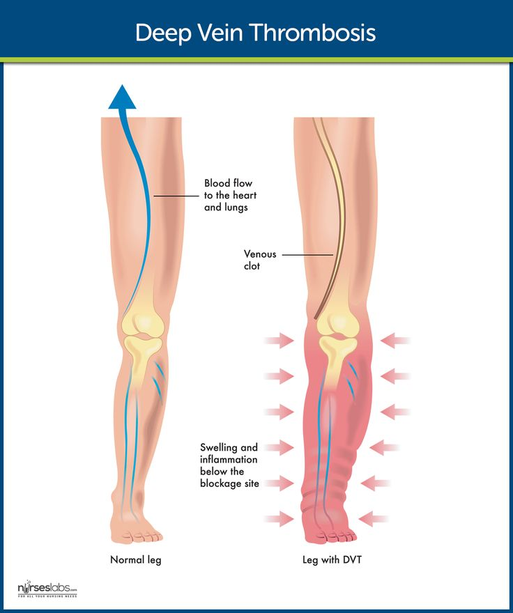 deep vein thrombosis Deep vein thrombosis (dvt) is a serious condition that occurs when a blood clot forms in a vein located deep inside your body they typically form in your lower leg.