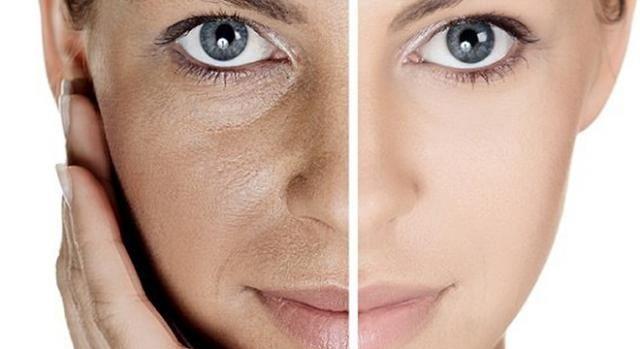 8 sencillos consejos para reducir los poros abiertos.  Trucos fáciles para disminuir el tamaño de los poros y conseguir una piel más lisa. #Salud #Belleza #Piel #Cutis #Poros