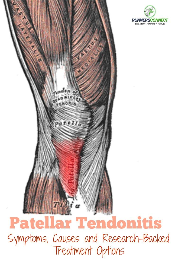 Patellar Tendonitis makes up 5% of all running injuries. In this article, we outline the symptoms, causes and research-backed treatment options