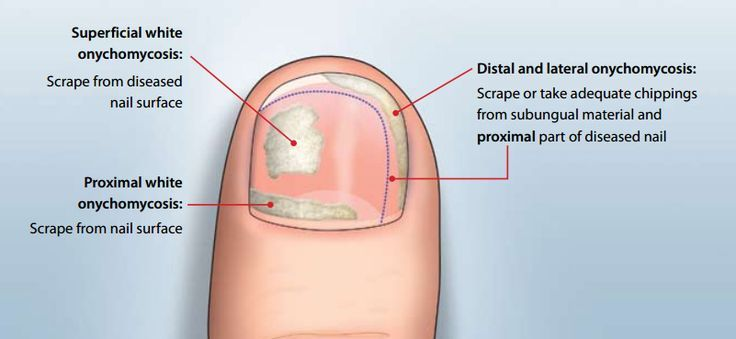 Symptoms of Toenail Fungus | Listerine Foot Soak