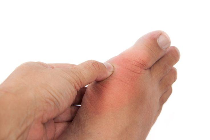 Dna moczanowa (podagra, artretyzm): przyczyny, objawy, leczenia