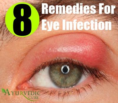 How To Cure A Stye Naturally