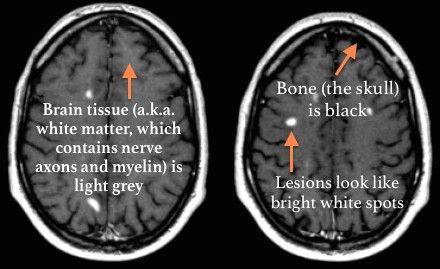 Multiple Sclerosis 101: The Who, What, When, Where, and Why of MRIs. Have you ever wondered what exactly and MRI shows and the impact the results can have on your treatment? Read more here!