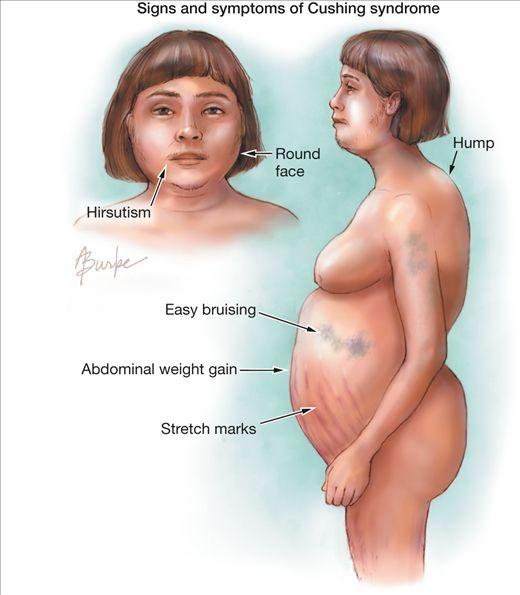 Cushing's Syndrome Symptoms | JAMA Network | JAMA | Cushing Syndrome and Cushing Disease
