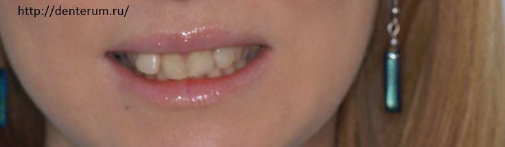 Успех лечения корневых каналов во многом зависит от #опыта_дантиста  и технологии, которые он использует. Хороший стоматолог, чтобы убедиться, что он достиг конца канала всегда воспользуется помощью апекс локатора.  Высокая компетентность Вашего стоматолога будет заметна довольно быстро - #после_лечения_каналов у Вас не должно быть отеков и острой боли. http://denterum.ru/vyilechit-zub-periodontit Самара, улица Ново-вокзальная 269