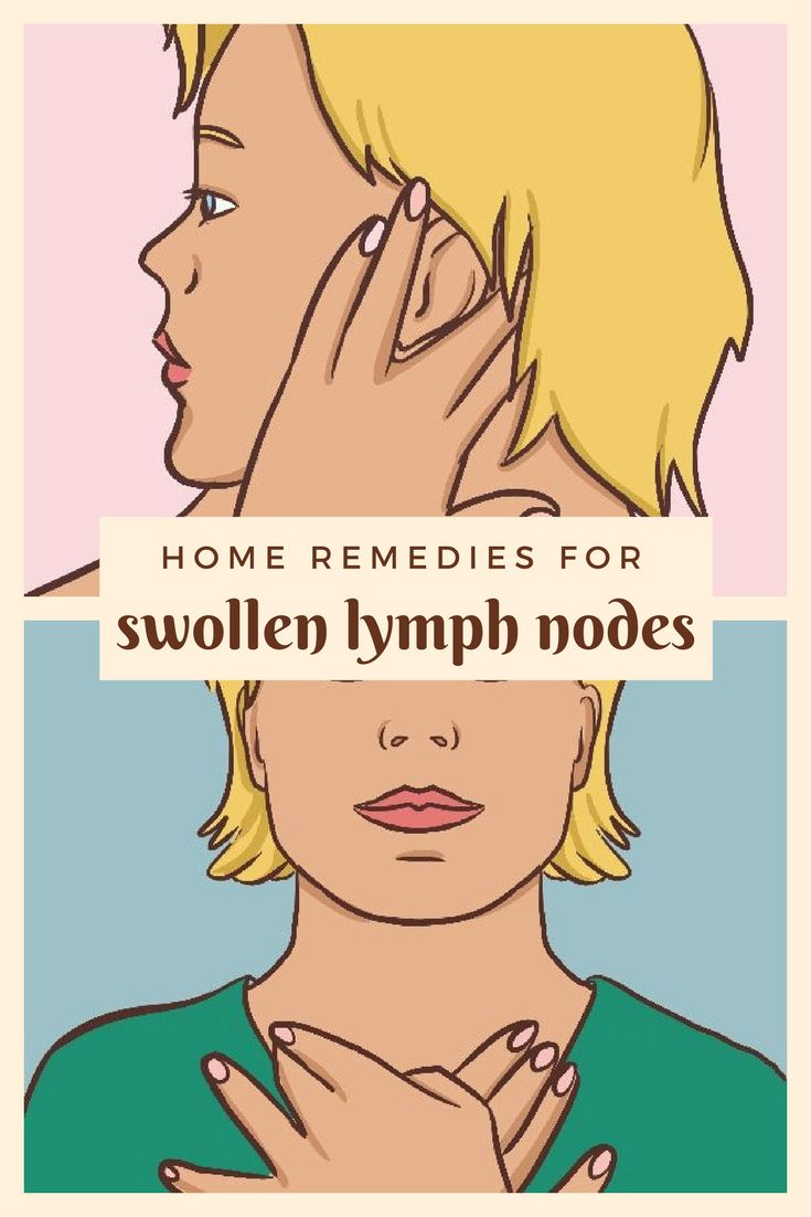 25+ best ideas about Lymph nodes on Pinterest | Lymph ...