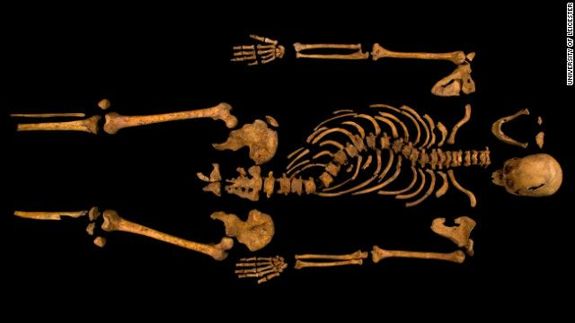 SKELETON OF RICHARD III:  The complete skeleton showing the curve of the spine. Supporters of the infamous king, including members of the Richard III Society, hoped the discovery would force academics to rewrite history, which they say has been tainted by exaggerations and false claims.
