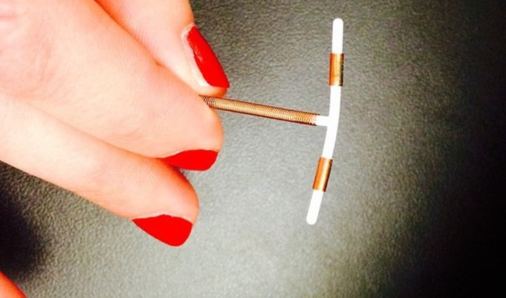 The One Thing No One Tells You About the Copper IUD.