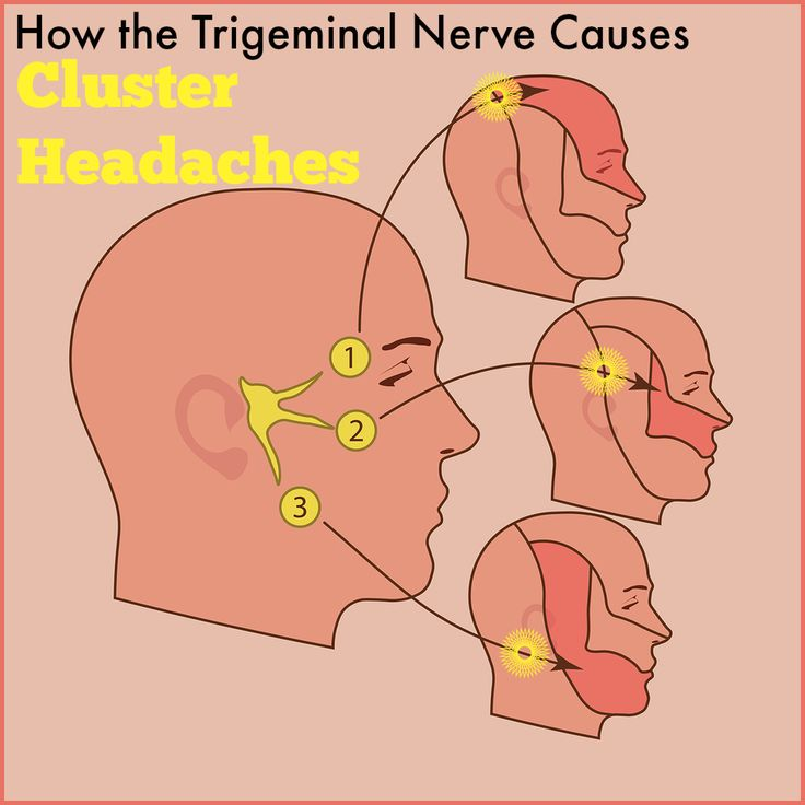 how trigeminal nerve causes cluster headaches
