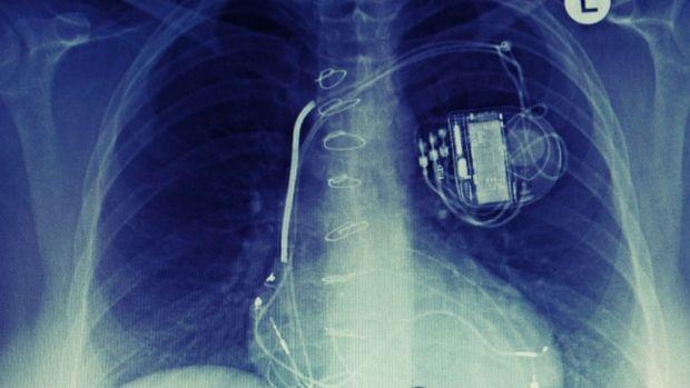Protegiendo dispositivos médicos de ataques de hackers. #seguridad #eSalud #eHealth #marcapasos #BombasdeInsulina #tecnologia