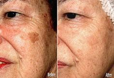 How To Get Rid Of Age Spots On Face? Learning how to get rid of age spots, also known as sunspots or liver
