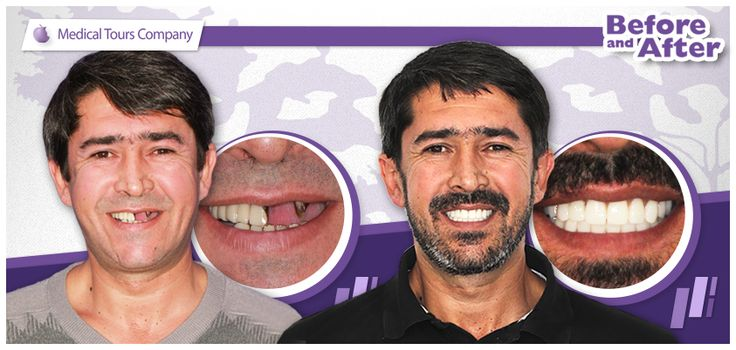 Missing teeth and premature aging Read the full article, including a case study, here: http://medicaltours.co.uk/blog/blog_mod/missing-teeth-and-premature-aging/.