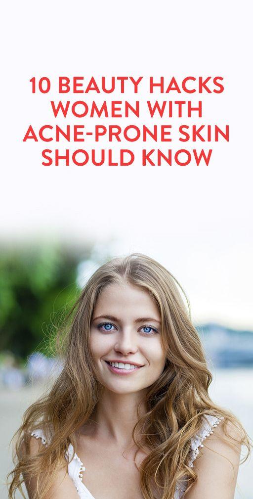 10 Beauty Hacks Women with Acne-Prone Skin Should Know