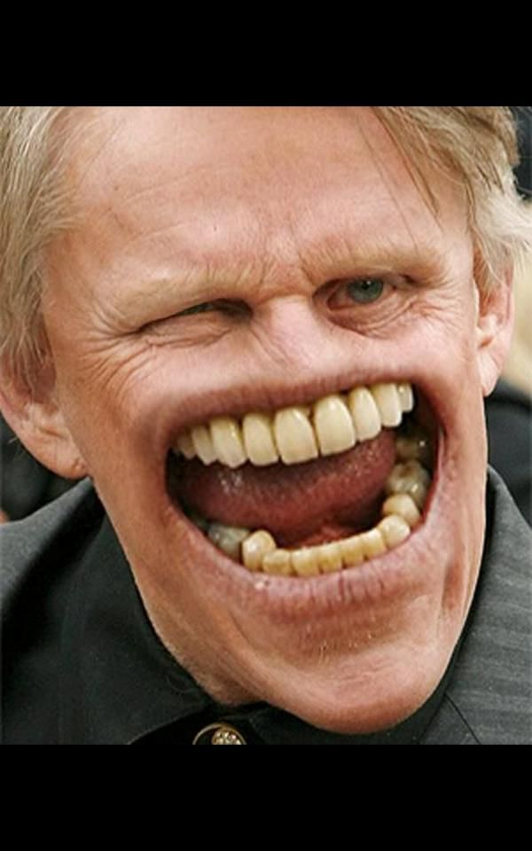 oh lawd gary busy and dem dayum teeth of his he be