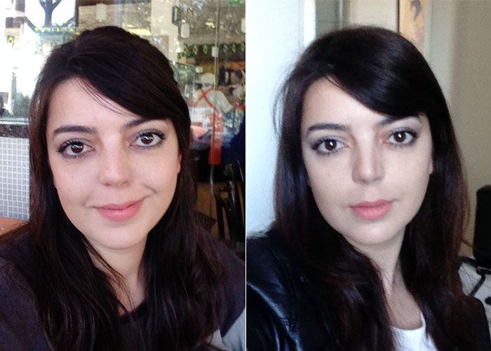 Preenchimento com ácido hialurônico nas olheiras | Just Lia