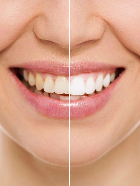 Weiße Zähne sind DAS Schönheitsideal überhaupt. Guckt man sich die Stars an, hat man das Gefühl, dass die Zähne von Monat zu Monat weißer