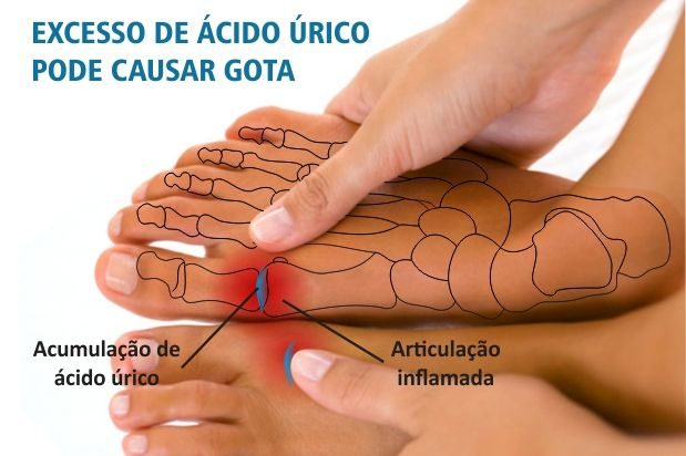 Los remedios caseros para el ácido úrico alto consisten en tratamientos para: Disminuir los síntomas de hiperuricemia ( dolor, degeneración de las articulaciones), prevenir los ataques de gota, y reducir los niveles de ácido úrico.