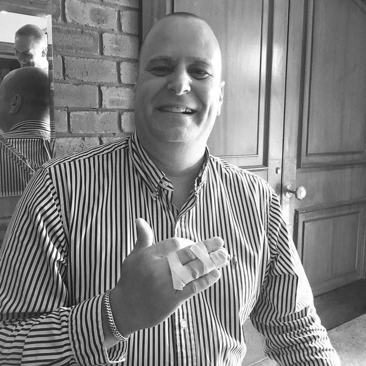 The face of networking commitment. Andy from SA Insolvency still makes our @staffsbforbuk meeting despite the bad injury & impending visit to hospital. How far are you prepared to show others your reliability #today? :-) #staffordshire #stafford #networking #stoke #mentoring #referral #marketing #reputation #building #socialmedia #focus #wordofmouth #leadgeneration #leads #fun #BforB #BRNUK #cannock #business #growth #startups #entrepreneurs #golf #breakfast #insolvency #administration