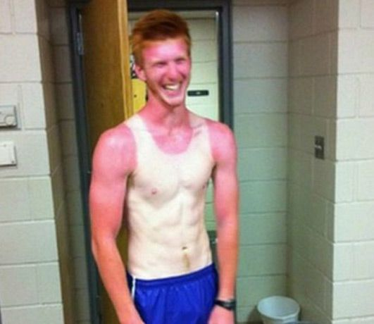 10 Hilarious Examples Of Sun Tans Gone Very Wrong - https://voolas.com/sun-tans-gone-very-wrong/  #Beauty, #People, #Sun_Tan Funny, Health