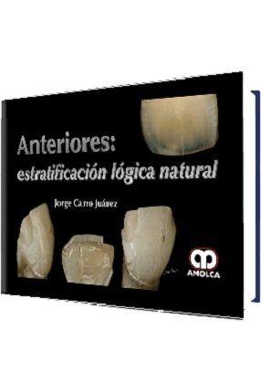 Anteriores: estratificación lógica natural - Carro Juarez  #AZMedica #LibrosdeOdontologia #OdontologiaEstetica #ProtesisDental #MecanicaDental #Protesistas #Libros