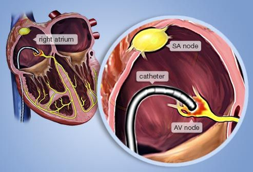 Illustration of heart ablation procedure.. Done this three times..:/ wish it would cure the problem. I guess my heart is stubborn and likes beating to its own rhythm..